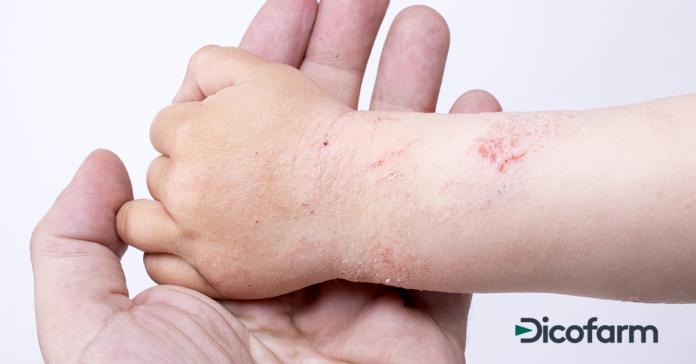 Allergie ed eczema allergico
